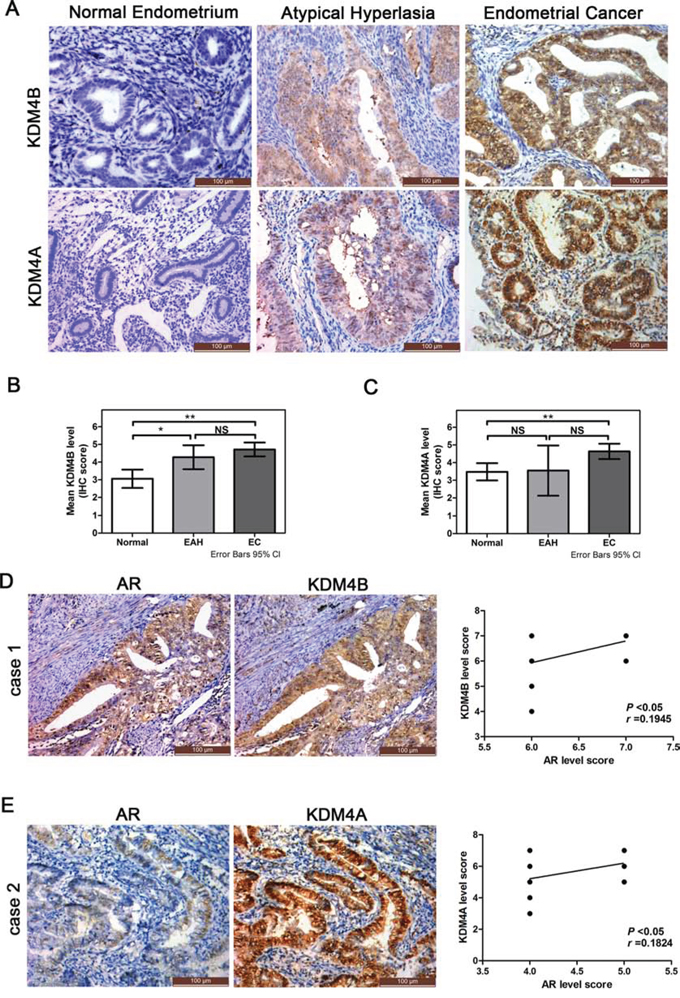 Expression of KDM4B and KDM4A in endometrial tissues and their relationship to AR expression in EC specimens.