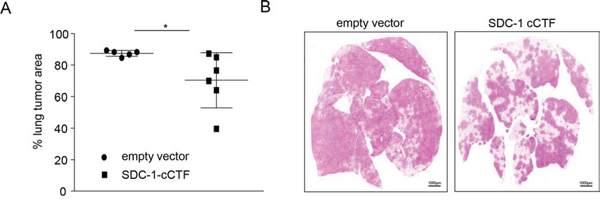 Syndecan-1 cCTF suppresses lung metastasis formation of A549 cells in SCID mice.