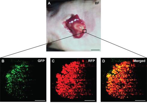 Intravital imaging of tumor-targeting S. typhimurium A1-R in HT-29 liver metastasis.