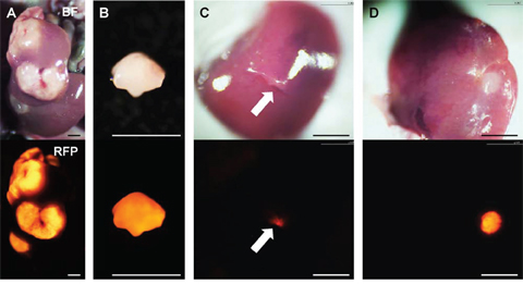 Establishment of orthotopic liver metastasis mouse models.