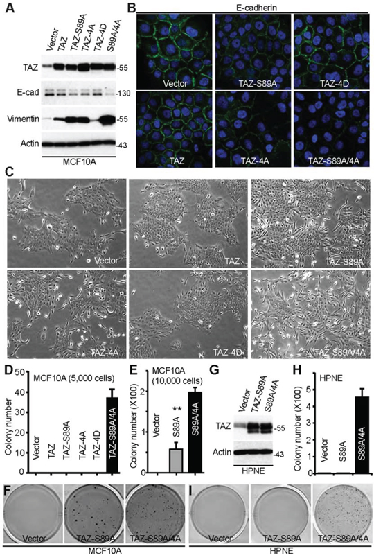 Mitotic phosphorylation of TAZ inhibits EMT and anchorage-independent growth.