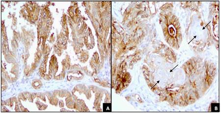 FRA Expression of papillary adenocarcinoma and adenosquamous carcinoma.