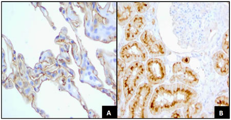 FRA Expression in Normal Tissues.