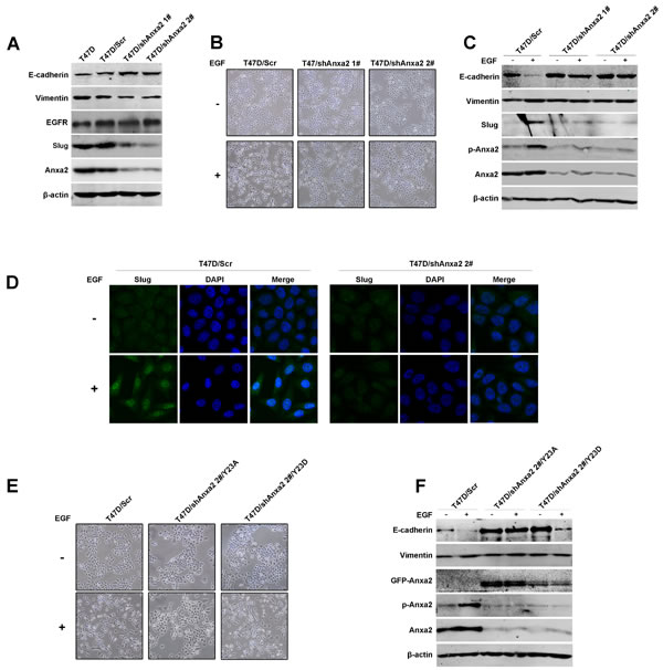 Anxa2 is required for EGF-induced EMT in human breast cancer cells.