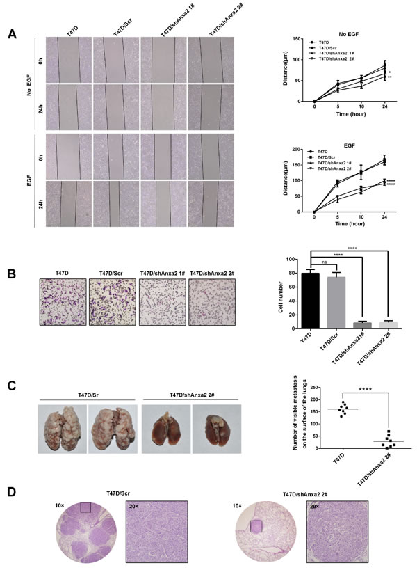 Depletion of Anxa2 expression impairs invasive potential of T47D cells