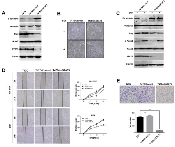 Downregulation of STAT3 expression inhibits EGF-induced EMT and cell migration and invasion in T47D cells.