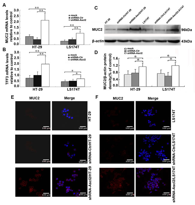 Ascl2 knockdown in CRC cell lines increased expression of goblet cell specific genes.