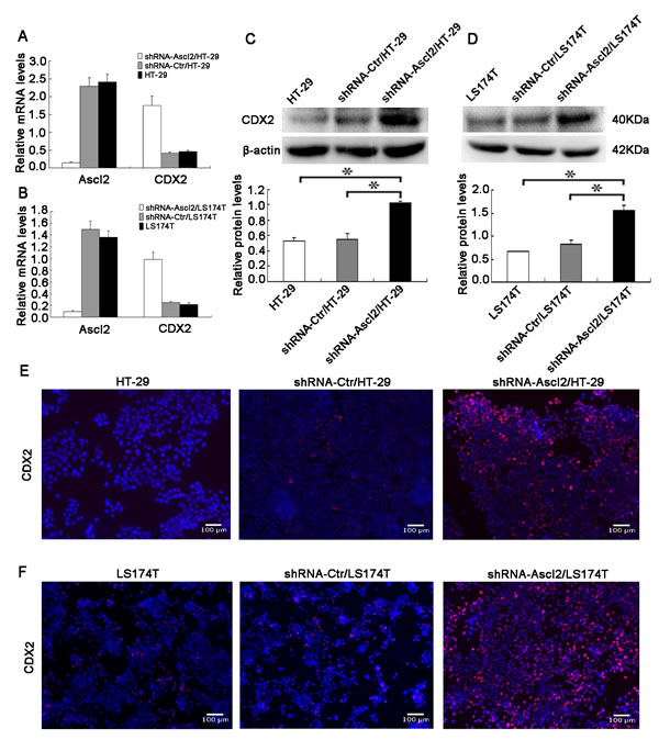 Ascl2 knockdown in CRC cell lines increased CDX2 expression.