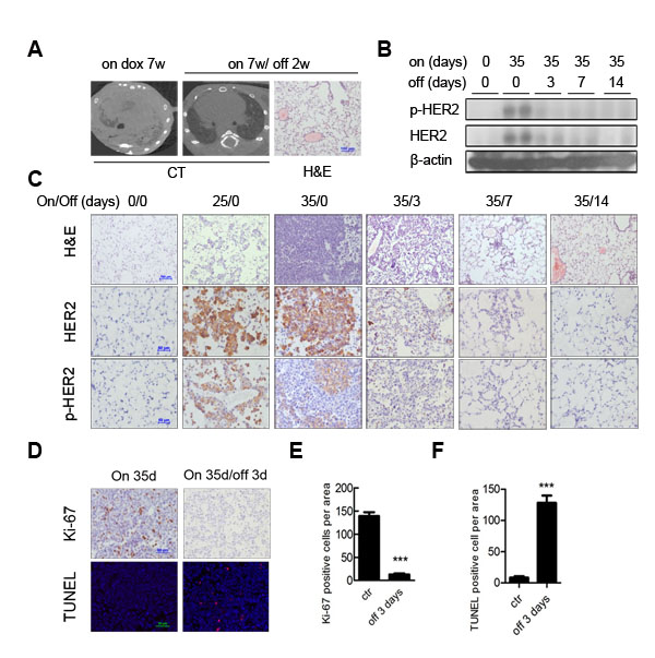 HER2 H878Y driven lung tumor depends on continuous expression of transgene for maintenance.