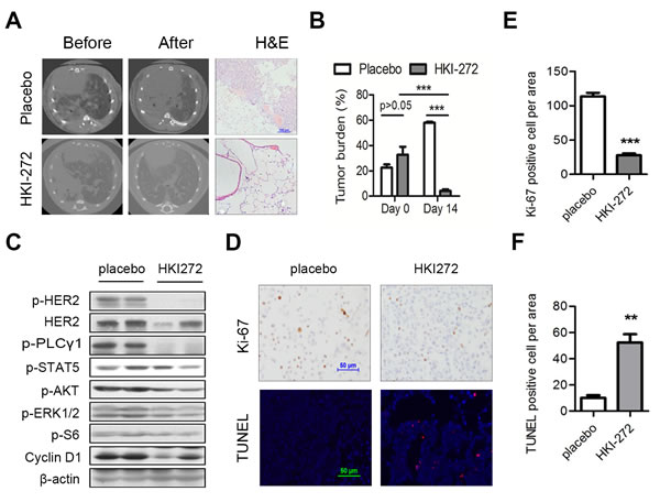 HER2 H878Y-driven lung tumor is sensitive to HKI-272 treatment.