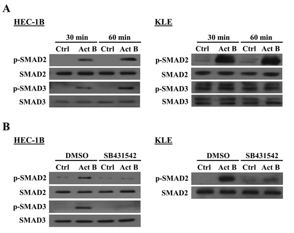 Effects of activin B on SMAD2 and SMAD3 phosphorylation in endometrial cancer cells.