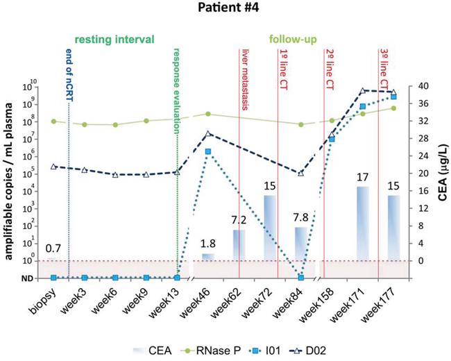 Detection of tumor-specific chromosomal rearrangements in liquid biopsies from Patient #4.