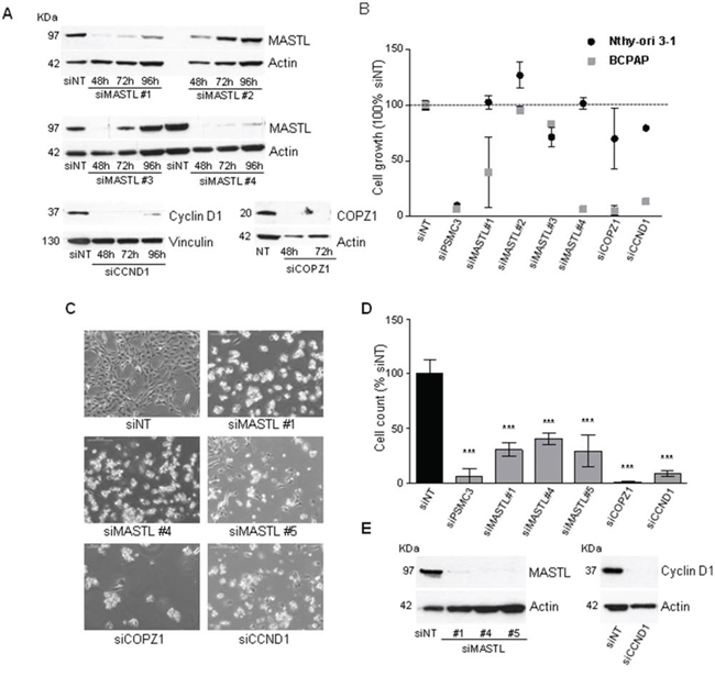 Effect of MASTL, CCND1 and COPZ1 silencing on BCPAP cells.