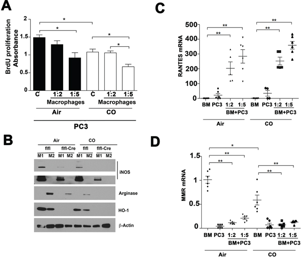 Effects of CO treatment and HO-1 in macrophages on PC3 cell growth.