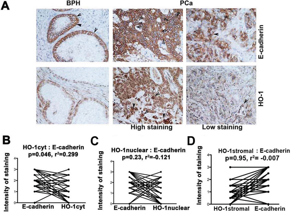 HO-1 expression correlates with E-cadherin levels in prostate cancer (PCa) and metastatic cancers.