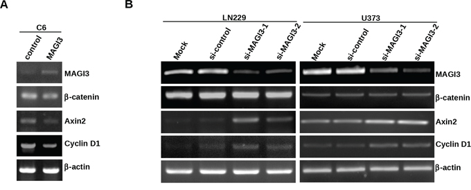 MAGI3 suppresses the expression of target genes of β-catenin signaling in glioma cells.