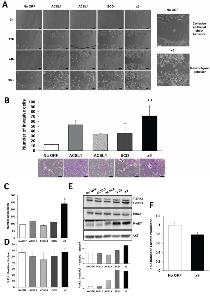 Combination of ACSL with SCD overexpression stimulates migration, invasion and colony formation without major effects on proliferation.