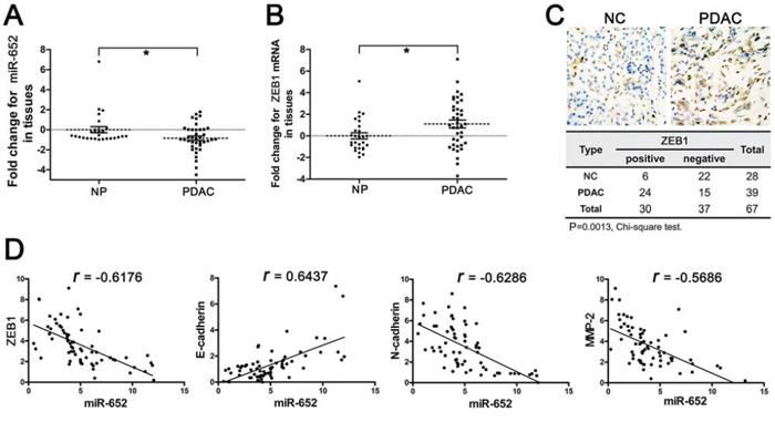 Deregulated miR-652-ZEB1 pathway in pancreatic cancer tissues.