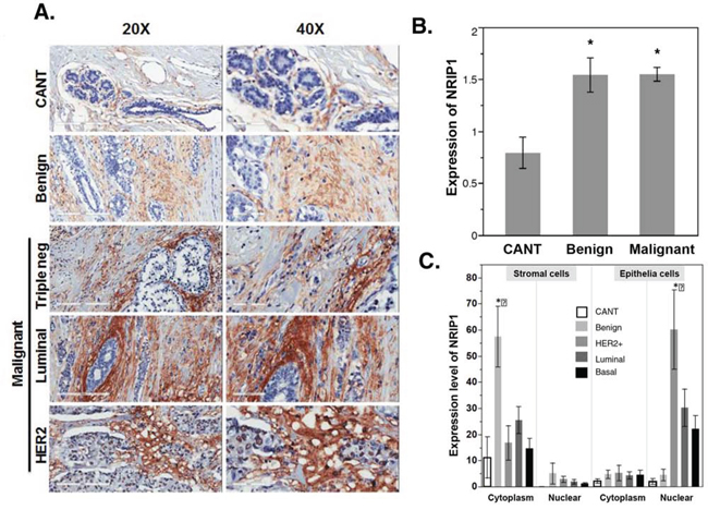 NRIP1 overexpression in human cancer tissue.