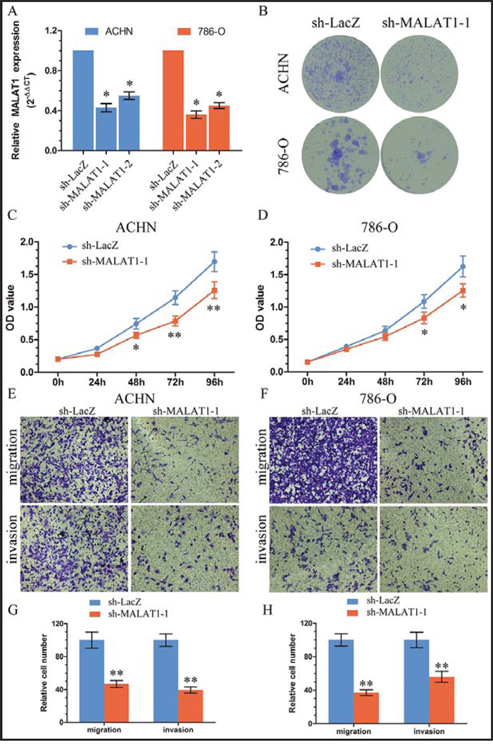 Knockdown of MALAT1 inhibited cell proliferation and metastasis in vitro.