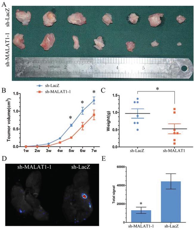 MALAT1 induced proliferation and metastsis in vivo.