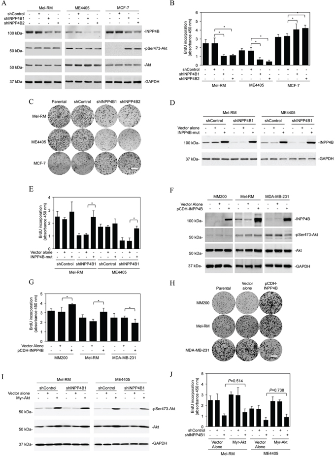INPP4B promotes proliferation of melanoma cells independently of Akt.