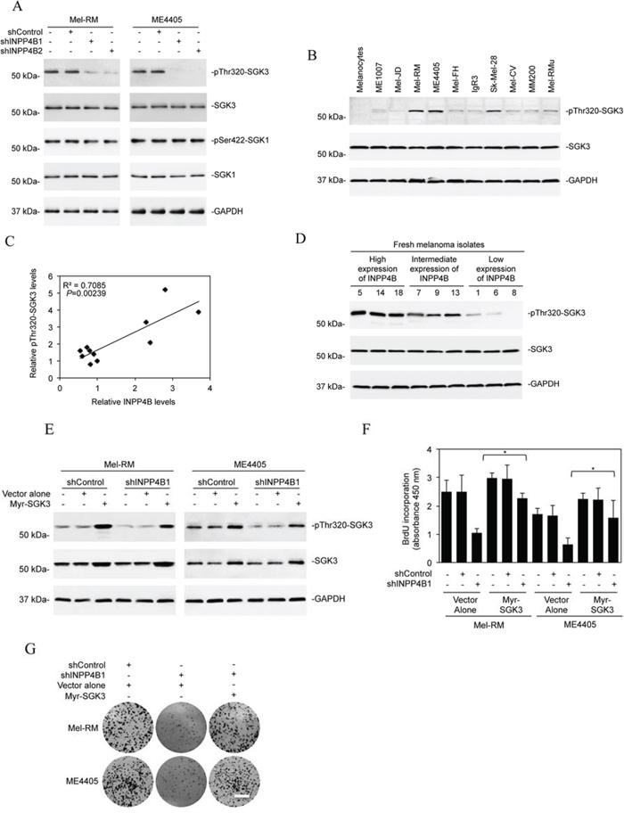 SGK3 is involved in INPP4B-mediated melanoma cell proliferation.