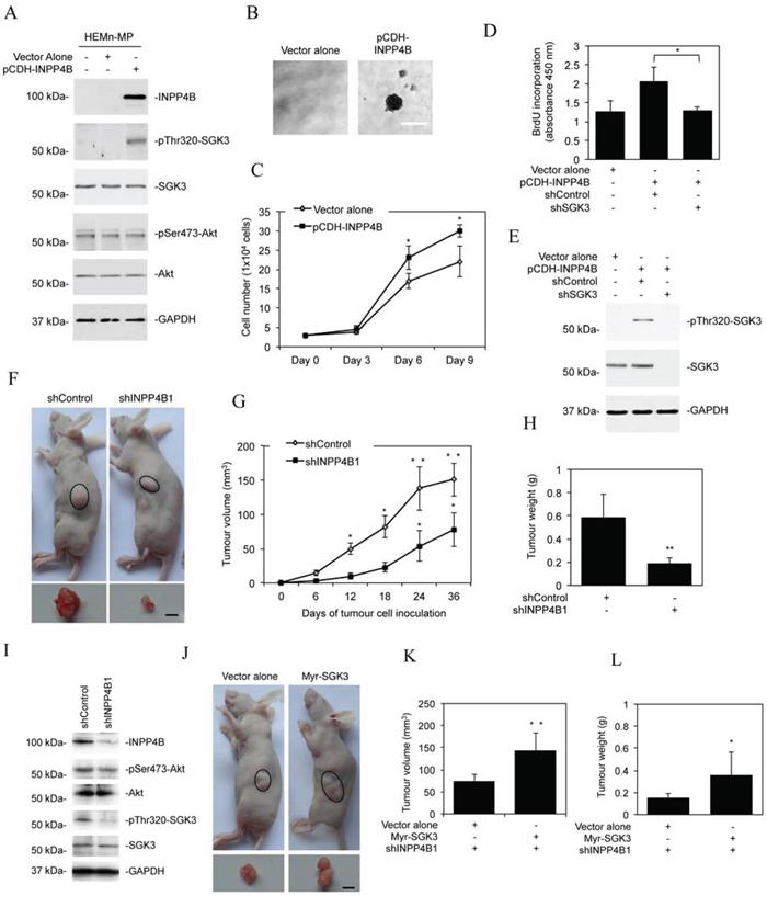 INPP4B promotes melanoma growth.