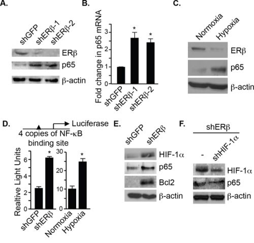 ERβ represses p65 expression and NF-κB activation.