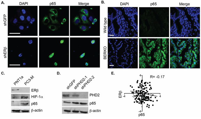 Analysis of ERβ and p65 localization and expression in prostate cells and tissues.