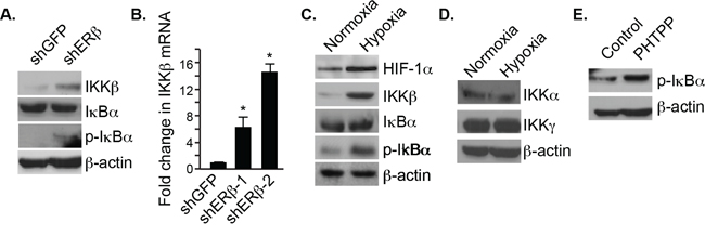 Regulation of IKKβ and pIκBα expression by ERβ and hypoxia.