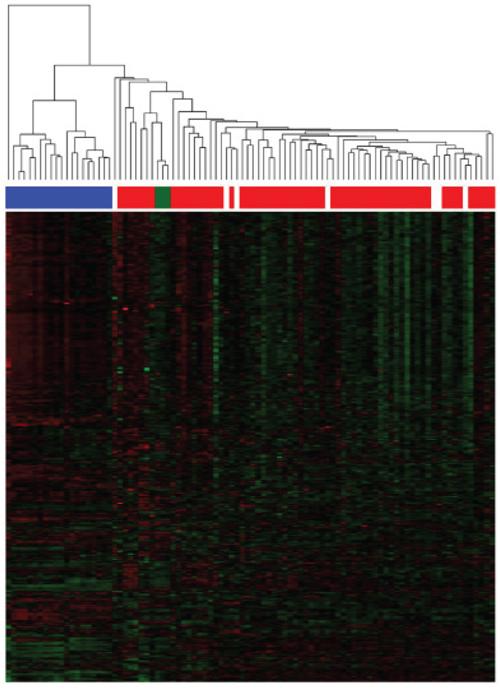 Unsupervised clustering based on miRNA expression.