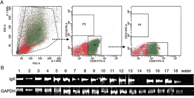 IGK expression in primary myeloblasts.