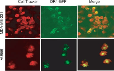 Confocal microscopy images showing the subcellular localization of ectopically expressed GFP-DR4 protein.