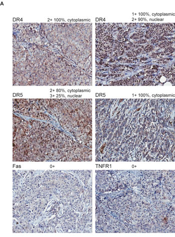 Immunohistochemical staining of DRs in primary breast tumors.
