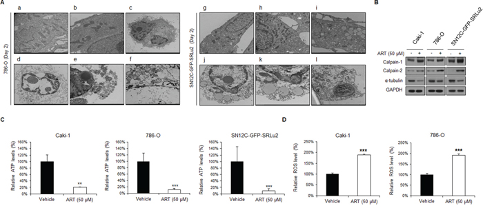 ART mediates oncotic cell death in human RCC cells via reactive oxygen species (ROS) generation and intracellular ATP depletion.