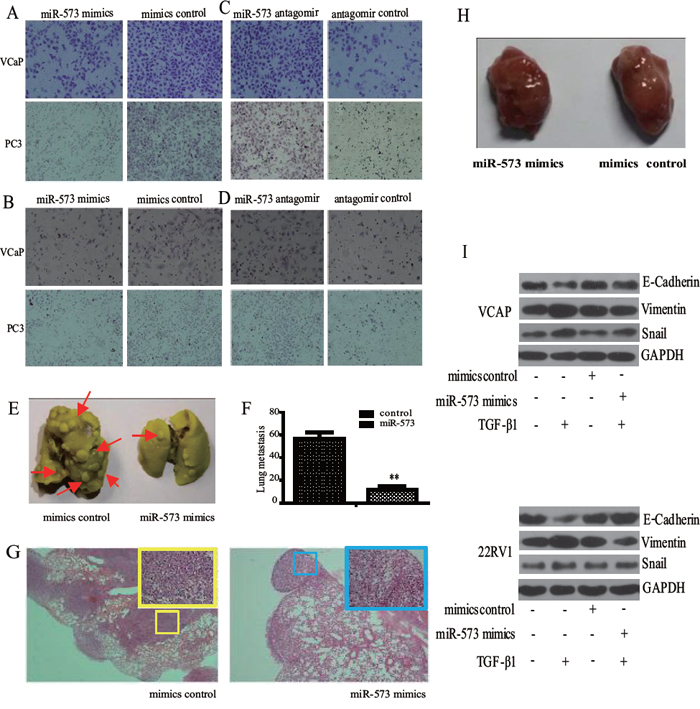 Effect of miR-573 on cell motility in vitro and and tumor metastasis in vivo.