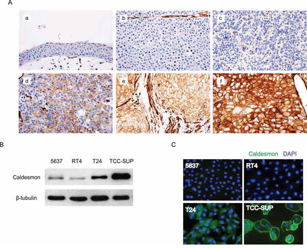 Protein expression of caldesmon (CAD) in human bladder cancer (BC) tissues and cell lines.