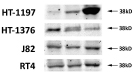 Figure 3:Detection LH-RH receptor protein (38 KD) by Western blotting.