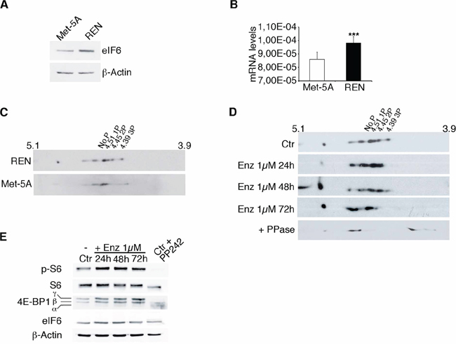 eIF6 hyperphosphorylation in REN cells is sensitive to Enzastaurin treatment.