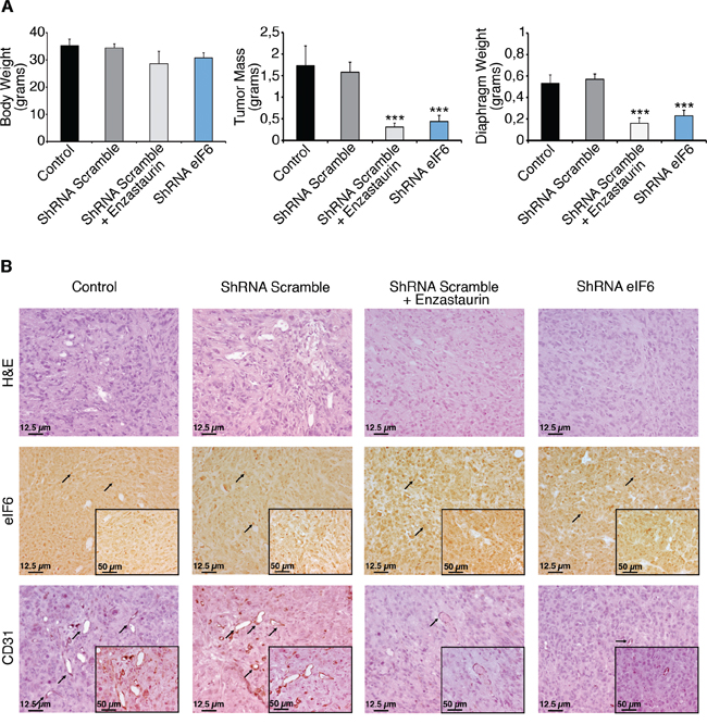 Enzastaurin administration and eIF6 depletion have a protective effect, in vivo.