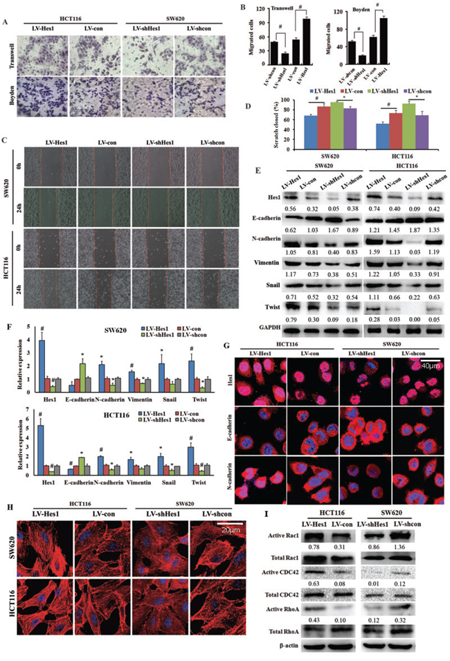 Effect of Hes1 expression on colon cancer cell migration and cell cytoskeleton organization.