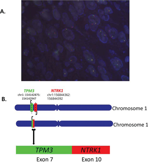 A. Fluorescence in situ hybridization (FISH) for break-apart of NTRK1 gene and B. TPM3-NTRK1 fusion with the 5'end of NTRK1, including the kinase domain, starting at exon 10 fused to exon 7 of TPM3 by NGS.