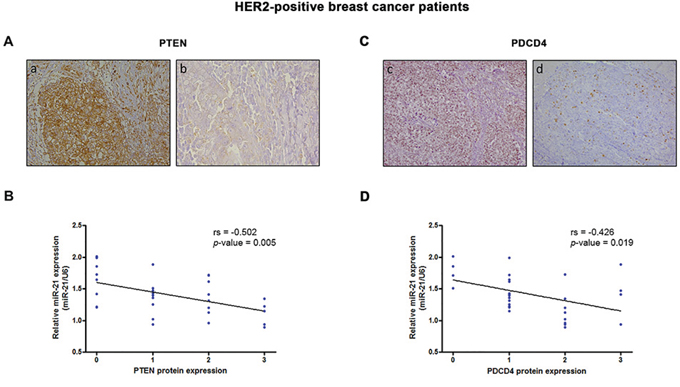 PTEN and PDCD4 protein levels correlate with miR-21 expression in HER2-positive breast cancer.