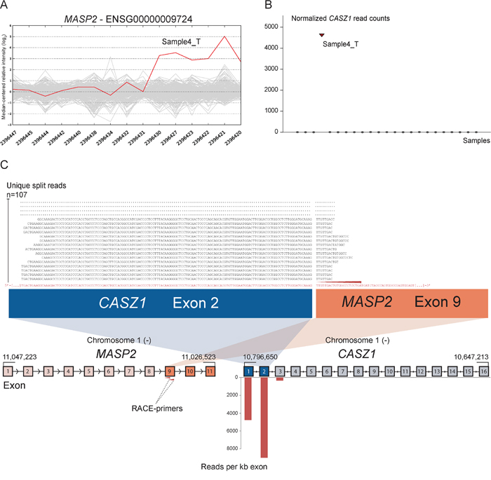 Novel fusion between CASZ1 and MASP2 is in concordance with 3′ overexpression of MASP2.