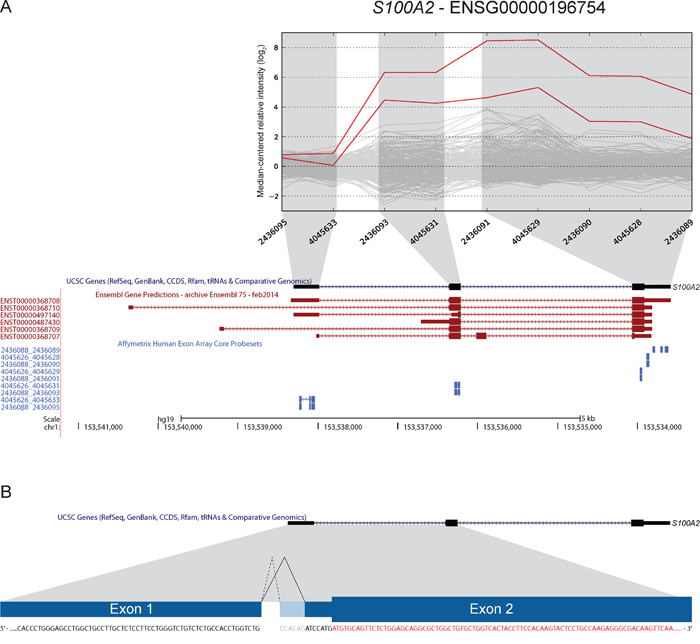 A novel 3′ splice-site in S100A2 is found to be overrepresented in CRC.