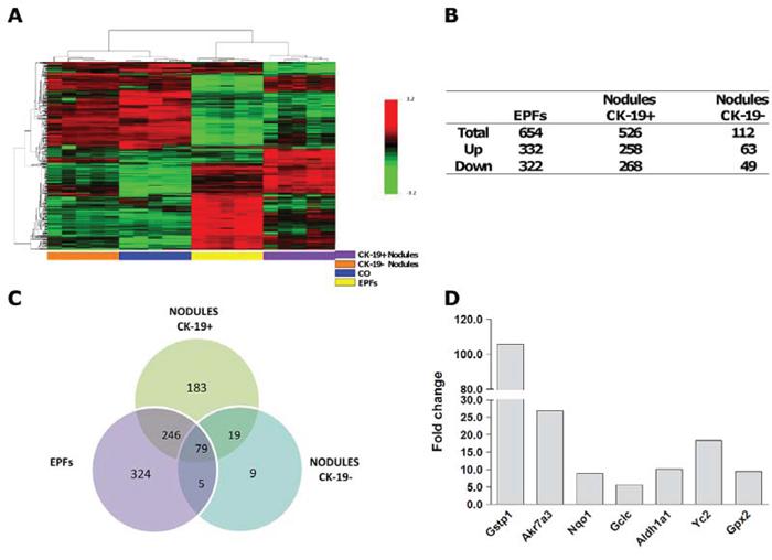 mRNA profile of EPFs, CK-19-positive and CK-19-negative nodules.