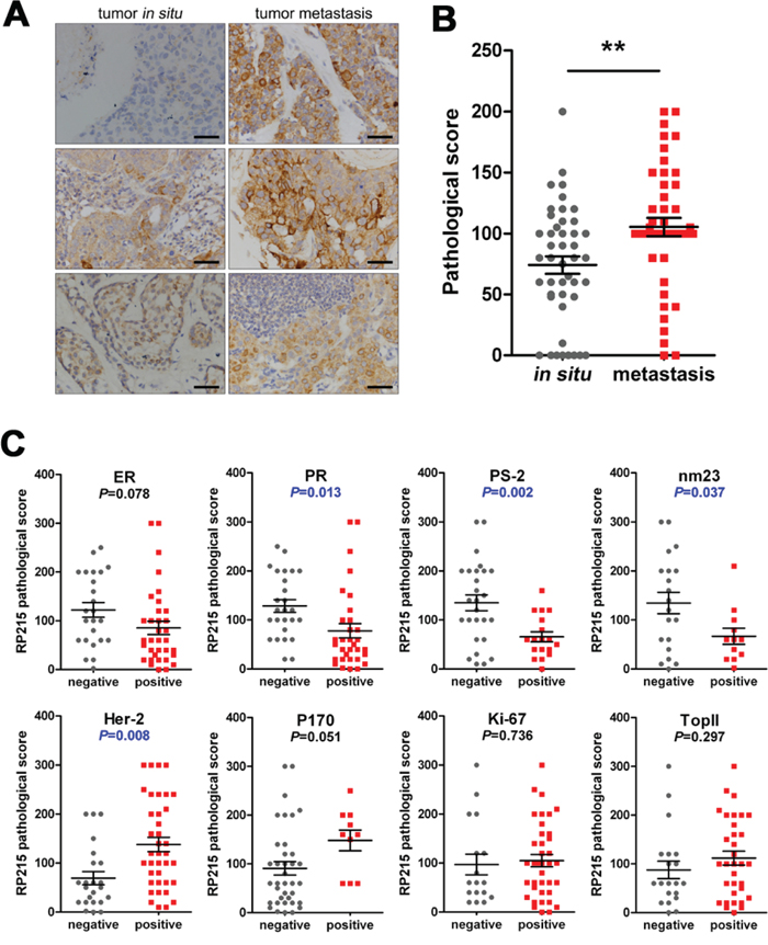 Expression frequency of RP215-positive cells was significantly high in metastatic cancers, which predicted metastasis and poor prognosis.