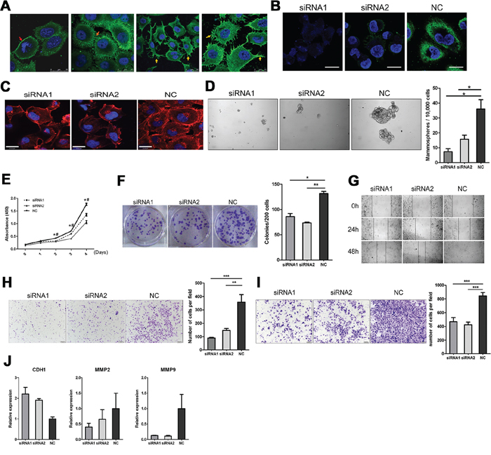 Sub-cellular localization of IgG showed on cancer cell surface, knockdown of IgG by siRNA targeting the heavy chain constant region of IgG reduces proliferation, migration, and invasion of the MDA-MB-231 cells.