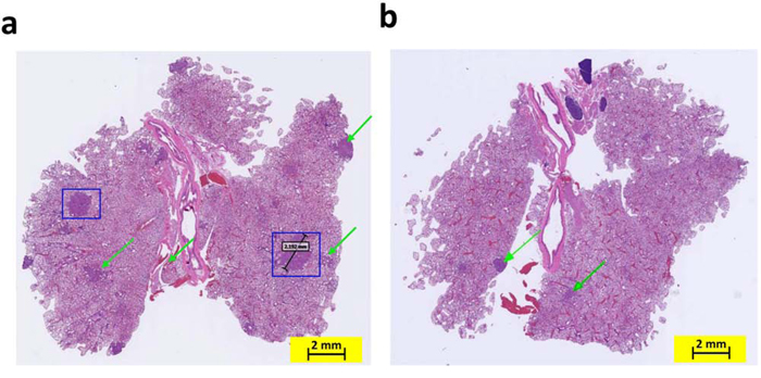 Knocking out the COX-2 gene in K-ras mice inhibited the formation of adenocarcinoma in the lungs by age 4 months.